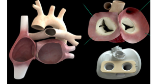 corazon-artificial con poliuretanoi